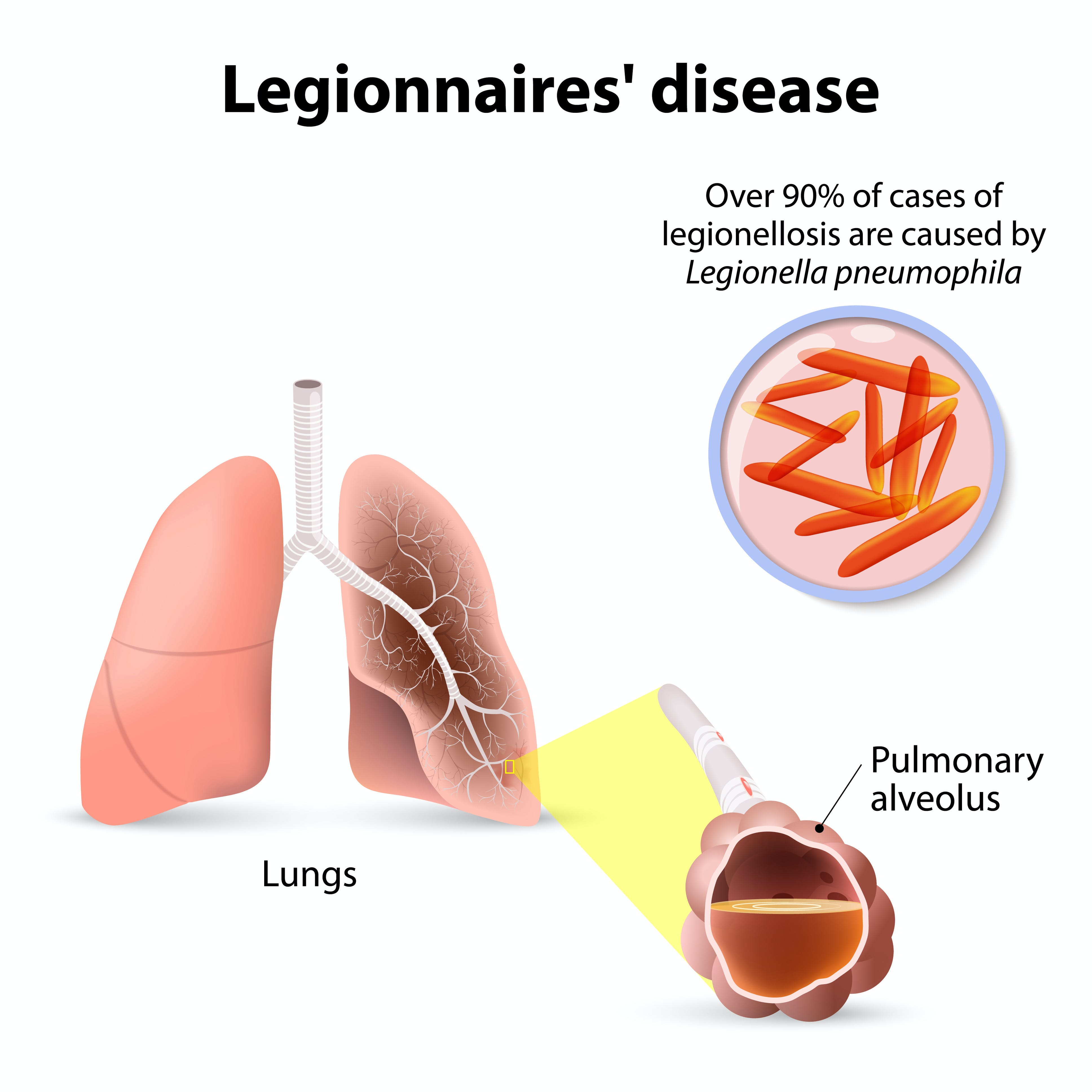 Why Now is the Time to Look at Legionnaires' Disease cover image